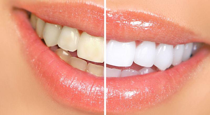 A Diy Recipe For Whiter Teeth In 14 Days Identity Magazine