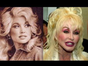 7 Celebrities Before And After Plastic Surgery Disasters